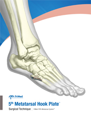 Jones Fracture Plate surgical technique manual cover