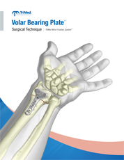 Volar Bearing Plate surgical techniques manual cover