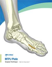 MTPJ Plate surgical techniques manual