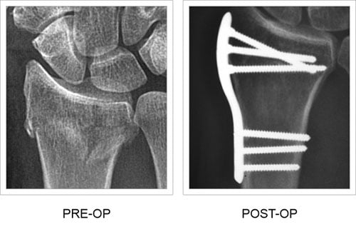 Pre and post-op x-ray comparison