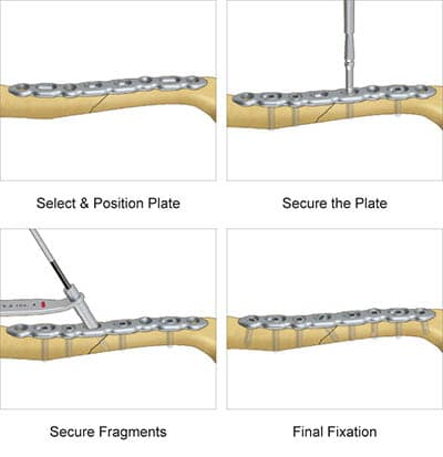 Surgical technique preview for TriMed's Superior Midshaft Clavicle Plate