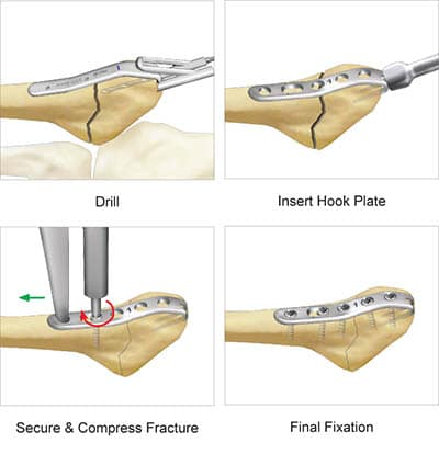 Jones Plate surgical technique preview