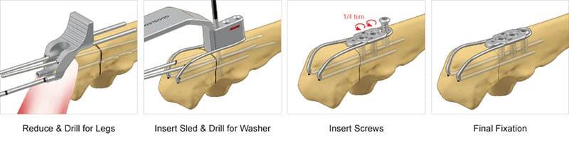 Olecranon sled surgical technique preview