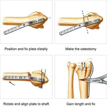 Radial Column Malunion Plate surgical technique preview