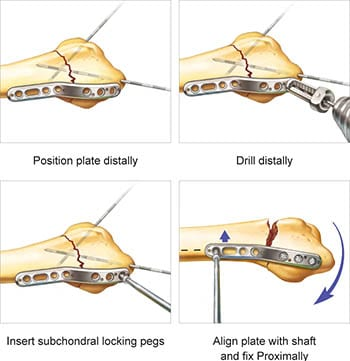 Surgical Technique preview for TriMed's Radial Column Peg Plate implant