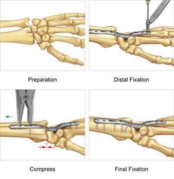 Surgical technique preview for the Total Wrist Fusion Plate