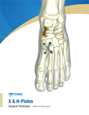 Xplate surgical techniques manual