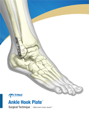Ankle Hook Plate surgical techniques manual cover