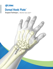 Dorsal Hook Plate surgical techniques manual cover