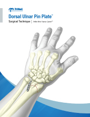 Dorsal Ulnar Pin Plate surgical technique manual cover
