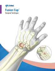 Upper Fusion Cup surgical techniques manual