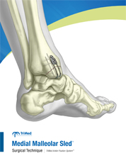 Medial Malleolar Sled surgical techniques manual cover