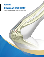 Olecranon Hook Plate surgical technique manual cover