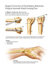 Radial Column Malunion Plate surgical techniques manual cover