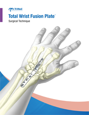 Total Wrist Fusion Plate surgical techniques manual