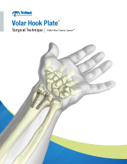 Volar Hook Plate surgical techniques manual cover
