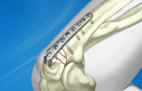 Olecranon Hook Plate System fixated to radial fractures