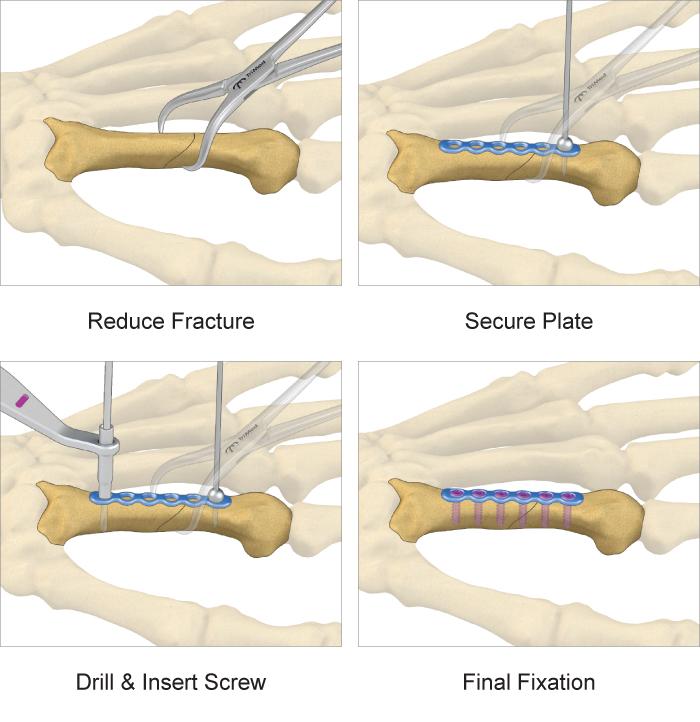 Hand Plates surgical technique