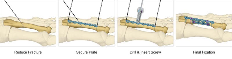Surgical technique preview for TriMed's Distal Xtremities Plate system