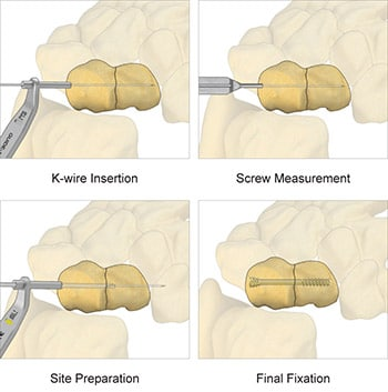 Scaphoid Screw fixation preview