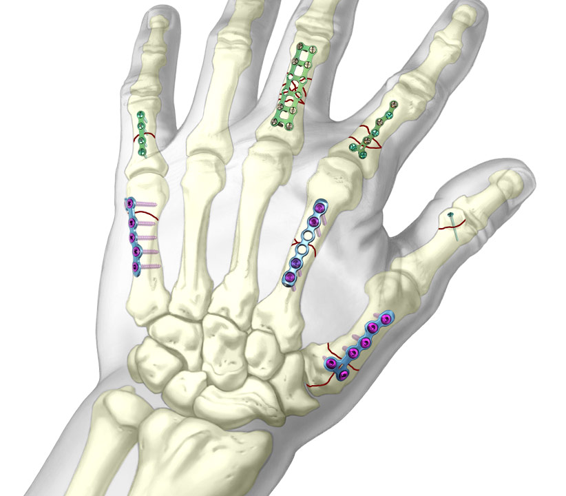 Graphic of TriMed's Hand Plating System