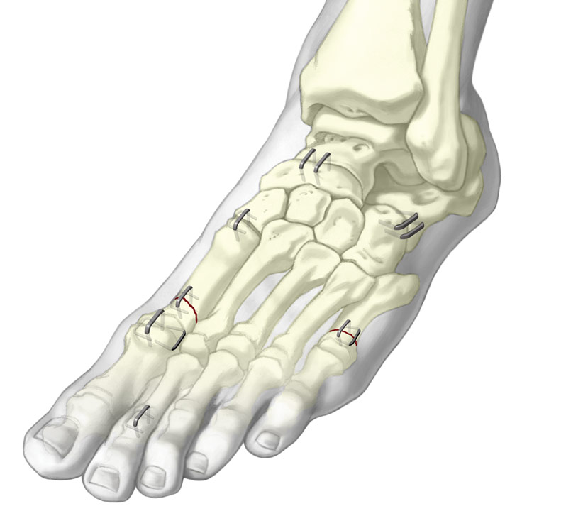 Graphic of staples installed onto bones of the toes