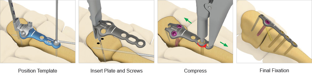 Universal Cobra Hook Plate surgical technique preview