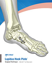 Lapidus Hook Plate surgical technique manual cover