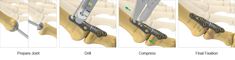 step-by-step surgical technique graphic