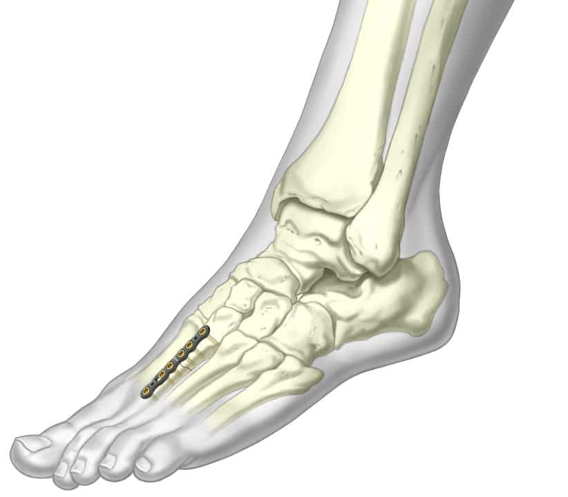 ASET™ Straight Plate fixated to second metatarsal bone