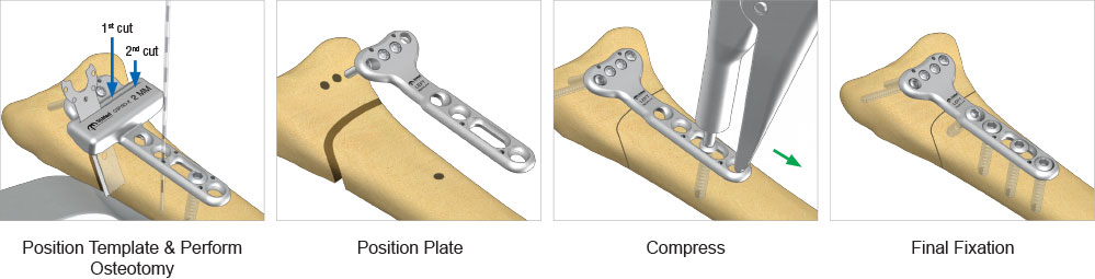 Radial Osteotomy Plate surgical technique