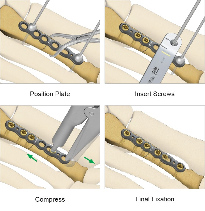 Overview of the ASET™ Straight Plate fixation process