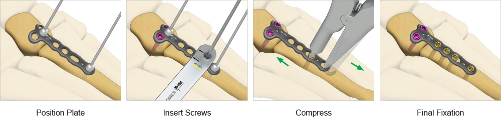 Steps in the ASET™ T-Plate surgical process