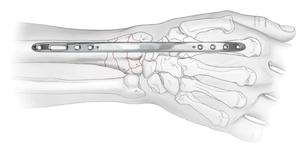 Bridge Plate fixated to wrist fracture