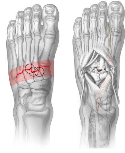Complex Ossa tarsi fracture graphics
