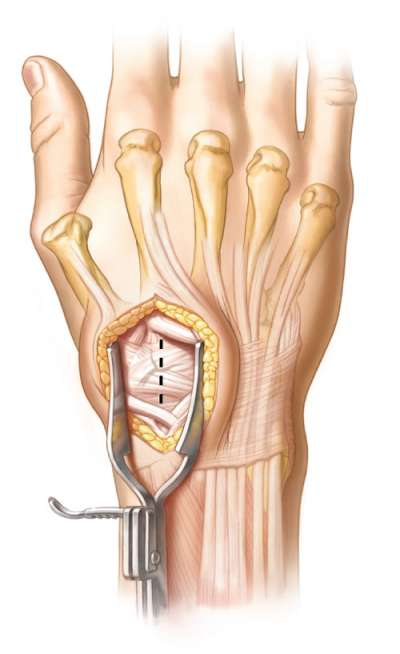 Incision & release of the extensor retinaculum