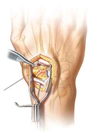 Autologous cancellous bone graft placed between the joint surfaces