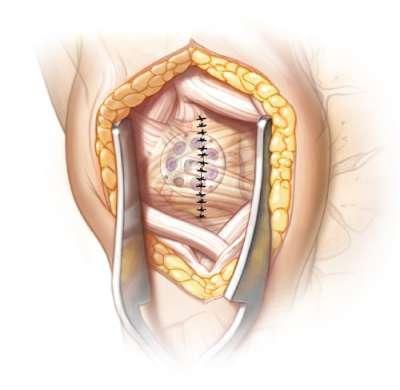 Repair of the capsule and/or retinaculum flap