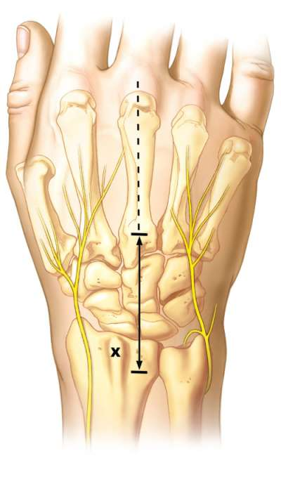 Line hightlighting the incision point over the radiocarpal and midcarpal joints.