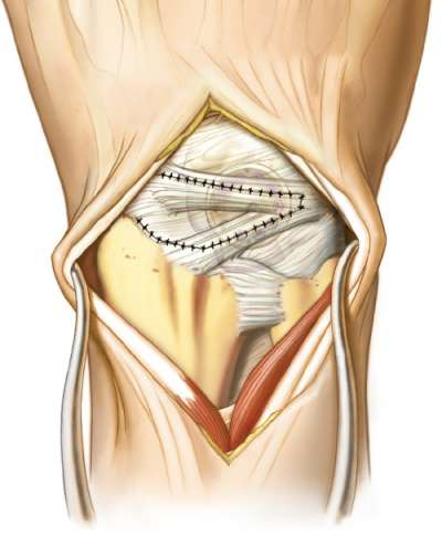 Nonabsorbable sutures in ligament