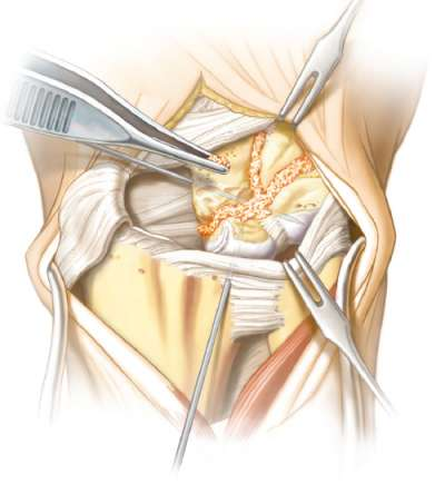 Bone graft packed in to be arthrodesed