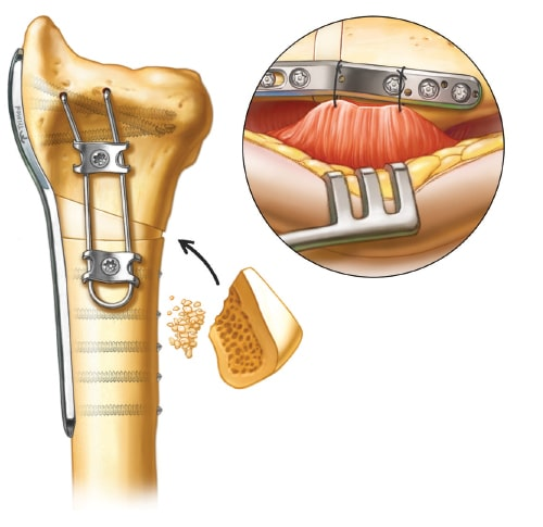 Supplemental fixation and bone grafting