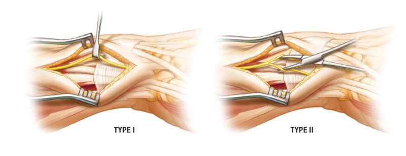 Type I and Type II patterns of the Superficial Branch of the Radial Nerve (SBRN)