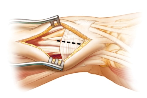 Tendon release of the frst dorsal extensor compartment
