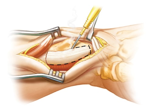 Brachioradialis tendon insertion release or excision