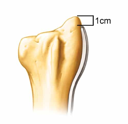 Placement of the Radial Column Malunion Plate in relative to the tip of the radial styloid