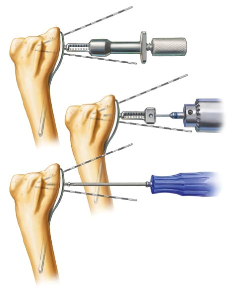 Distal fixation of the Radial Column Malunion Plate with three screws