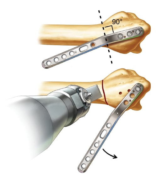 Determining the osteotomy site