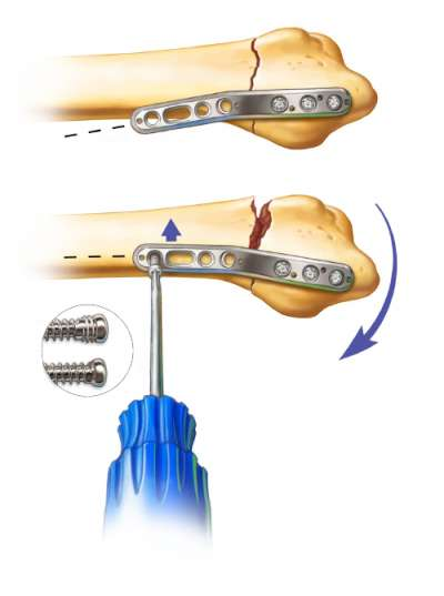 Proximal fixation of the Radial Column Peg Plate