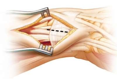 Tendon release of first dorsal extensor compartment